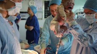 ANS faz consulta sobre medidas para reduzir número de cesarianas