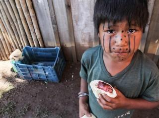 Índios brasileiros desenvolvem doenças 'urbanas' após mudanças no estilo de vida